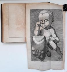 Bruchstücke aus der Zeichenlehre der Entbindungskunst.